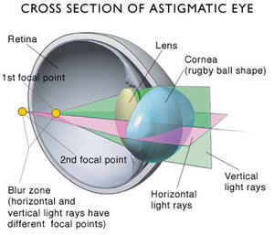 astigmatism-of-the-eye
